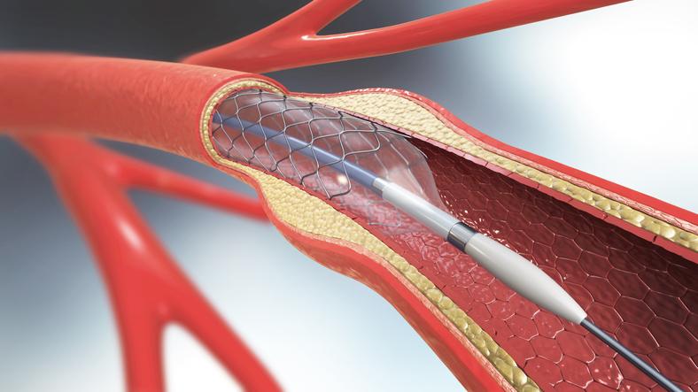 Stenting device inside artery